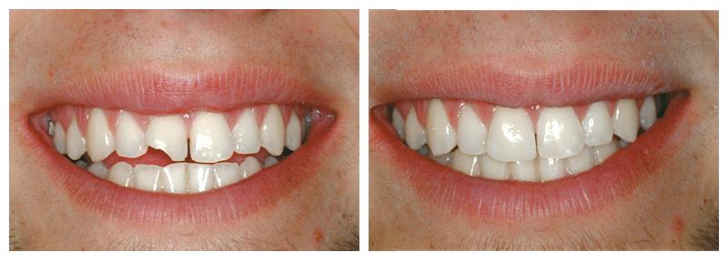 Dental Bonding Services In Bayonne, NJ