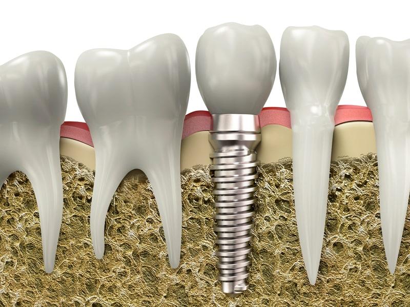 dentures in bayonne nj
